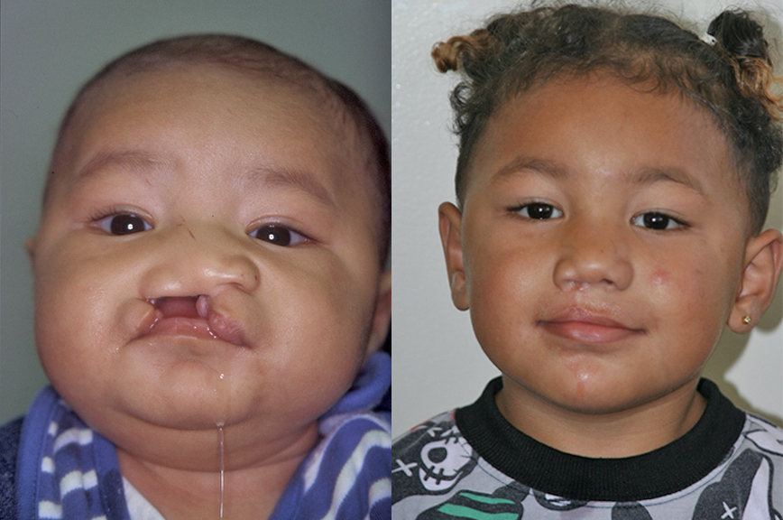 OIC_Specialties_Cleft_Palate_BeforeAfter_Large